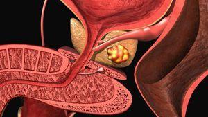 Причините за калиумот простатитис: главните симптоми и третманот